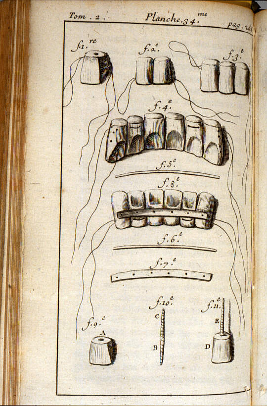 Diagramme_de_Pierre_Fauchard_sur_la_restauration_des_dents